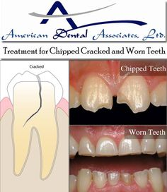 Special thin laminates, called veneers, can often be used to correct discolored, worn down, cracked and chipped teeth. - See more at: http://www.atooth.com/chipped-cracked-worn-teeth/#sthash.wFjn7QR9.dpuf
