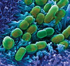 """""""Antibiotic tolerance can be as big a problem as antibiotic resistance."""" This image is of a Starved Escherichia coli bacteria (green) challenged with synthetic molecules could lead to new #antibiotics"""