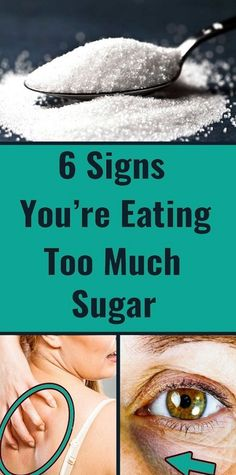 6 Important Signs You're Consuming Too Much Sugar - Health Care Health And Fitness Tips, Health And Beauty Tips, Health Advice, Health Care, Women's Health, Herbal Remedies, Health Remedies, Natural Remedies, Blackhead Remedies