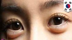 Puffy Eyes Or 'Aegyo-Sal' Is The Hottest New Korean Fashion Trend - http://urbangyal.com/puffy-eyes-or-aegyo-sal-is-the-hottest-new-korean-fashion-trend/