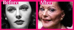 hedy lamarr surgery before after photo
