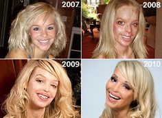 Katie Piper was an aspiring model and television personality when an ex-boyfriend, who she had dumped for raping, beating, and cutting her, plotted an executed a plan to throw acid into her face outside of an internet cafe. If she can get through all of that with a smile on her face, I can get through the petty little difficulties that life is throwing me right now. What an absolute inspiration!