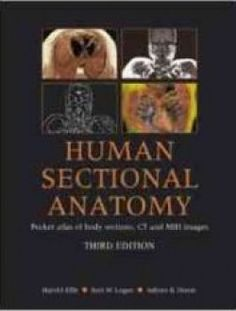 Human Sectional Anatomy: Pocket Atlas of Body Sections - Free eBook Online