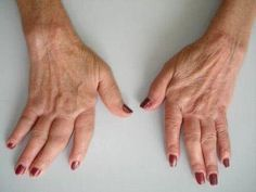remédios caseiros para artrite