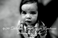 1p36 Deletion / Duplication Syndrome - Australian Support Network awareness video.