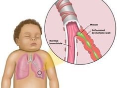 """rightatrium: """""""" RSV disease is very highly contagious. It is spread from respiratory secretions through close contact with infected persons or contact with contaminated surfaces or objects. Infection can occur when infectious material contacts mucous. Respiratory Therapy, Respiratory System, Family Nurse Practitioner, Nursing Tips, Nursing Exam, Pediatric Nursing, Medical Field, Nurse Life, Autumn"""
