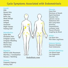 Endometriosis awareness for patients and doctors simplified by statistics Endometriosis Surgery, Endometriosis Awareness, Fibromyalgia, Endometriosis Quotes, Symptoms Of Endometriosis, Pleural Effusion, Polycystic Ovarian Syndrome, Abdominal Pain, Health