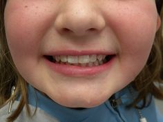Tooth repair (bonding) After: Note that the chip has been completely repaired. No evidence that this is not an undamaged tooth. Even the mottled appearance has been accurately matched. One very happy little girl!