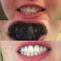 So I tried the activated charcoal teeth whitener and yes it works! Here's my results!