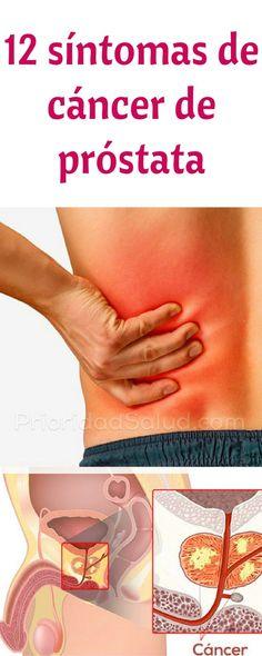 Síntomas de cáncer de próstata que ningún hombre debe ignorar.