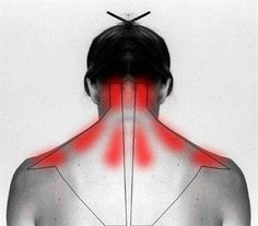 Acupuncture For Back Pain Learn why it hurts and how to self cure your stiff neck and shoulder pain. - With these gentle daily exercises, as well as the help of gravity inversion, you can improve your posture and ease your neck or shoulder pain. Health And Beauty Tips, Health And Wellness, Health Tips, Health Fitness, Beauty Tricks, Health Benefits, Health Remedies, Home Remedies, Arthritis Remedies