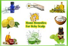 scalp remedies Rapid Home Remedies To Get Rid Of Itchy Scalp~ Read Now! - An itchy scalp can be more than just a frustrating problem. It can also be a signal for underlying medical conditions and thus, must be treated. Itchy Scalp Causes, Itchy Scalp Remedy, Dry Scalp, Oily Hair Remedies, Hair Remedies For Growth, Hair Growth, Scalp Conditions, Medical Conditions, Natural Home Remedies