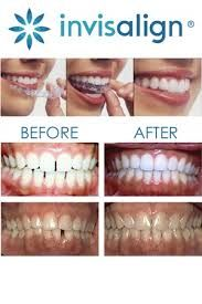 Change your smile in 6 months! Get a no cost Invisalign consult to see how your smile can be transformed. http://www.blueappledentalgroup.com/invisalign/