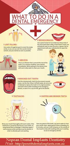 Do you know how to handle a dental emergency? What to do in a Dental Emergency? Dental Health, Oral Health, Dental Care, Dental Logo, Dental Quotes, Dental Facts, Dental Surgery, Dental Implants, Nose Surgery