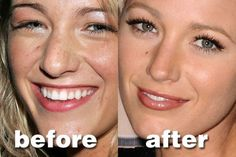 nose job blake lively The post Nose Job Blake Lively appeared first on Farah& Secret World. Nose Plastic Surgery, Best Plastic Surgeons, Plastic Surgery Photos, Nose Surgery, Blake Lively Nase, Blake Lively Body, Blake Lively Makeup, Rhinoplasty Before And After, Modern Gardens