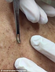 Addicting videos: Dr Lee can be seen extracting a blackhead from one of her patients. Blackhead Extraction, Blackhead Mask, Blackhead Remover, Acne On Nose, Blackheads On Cheeks, Pimples On Buttocks, Pimple Popping, Tips, Natural Treatments