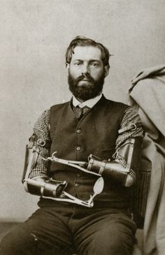 Civil War veteran Samuel Decker built his own prosthetics after losing his arms in combat. Date unknown.--How did he build his own prosthetics AFTER losing his arms?