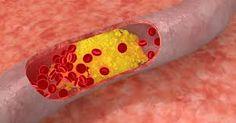 Arterele sunt o parte fundamentala a corpului uman, iar sanatatea lor este mai mult decat importanta.Sistemul cardiovascular este deteriorat in mod semnificativ de consumul de alimente procesate, …