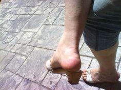 shemale t girl zoccoli clogs holzsandalen mules sandals high heels she male dr. scholl berkemann candid