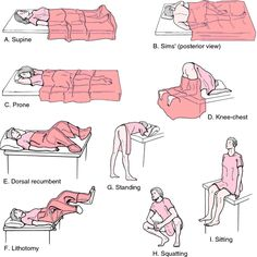 dorsal recumbent position - definition of dorsal recumbent position in the…
