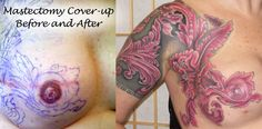 Mastectomy cover-up detail