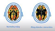 Stymulacja mózgu