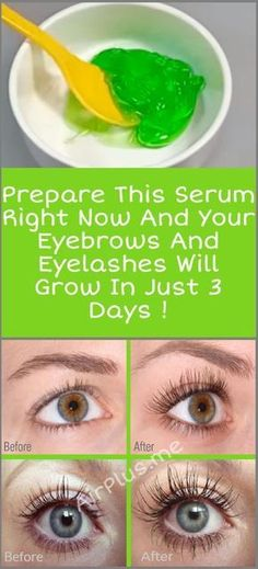 Prepare This Serum Right Now And Your Eyebrows And Eyelashes Will Grow In 3 Days Aloe vera gel, castor oil, vitamin E oil How To Grow Eyelashes, Longer Eyelashes, False Eyelashes, Eyebrows Grow, Fake Lashes, Fake Eyebrows, Castor Oil Eyelashes, Natural Remedies, Home Remedies