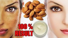 This is a magical Face Pack which will lighten your skin naturally. This Remedy is very effective for permanent skin whitening, so must read this & try this remedy today. PROCESS : Let's find out how to make this gorgeous face whitening night cream. First and most important ingredient si raw lamond. Take some almonds … #FirmingEyeCream Skin Treatments, Nail Treatment, Best Anti Aging, Anti Aging Skin Care, Beauty Tips For Skin, Skin Care Tips, Beauty Hacks