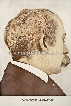 Syphiloderma ulceratum. 'Photographic Atlas of the Diseases of the Skin', 1903.