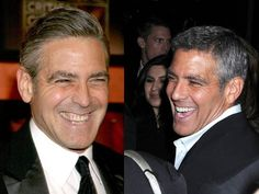 George Clooney Teeth Before and After Check these pictures out