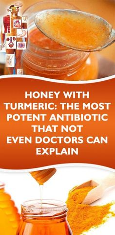 Next Post Previous Post Honey with Turmeric: The Most Potent Antibiotic That not even Doctors Can Explain Honig mit Kurkuma:. Holistic Remedies, Natural Health Remedies, Natural Cures, Herbal Remedies, Natural Life, Flu Remedies, Natural Honey, Natural Beauty, Psoriasis Remedies