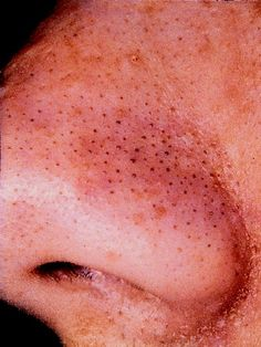 DIY: Come get messy with me!!!: Blackheads on your nose and how to safely remove them!!