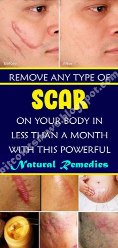 The scars ar permanent skin stains. There ar several treatments, as well as cosmetic surgery to correct the scarring. Natural Hemroid Remedies, Natural Remedies For Migraines, Natural Sleep Remedies, Natural Health Remedies, Cold Remedies, Herbal Remedies, Natural Cures, Scar Remedies, Arthritis Remedies