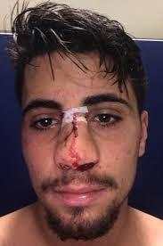 Image result for broken nose