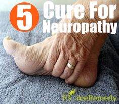 Neuropathy consists of a number of disorders that occur when the nerves of the…