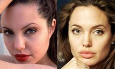 Angelina Jolie Plastic Surgery Before and After photos, Angelina Jolie Plastic Surgery chin, lips, nose, eyes, jaw and more..