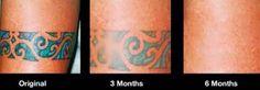 Dövme Silme: Dövme Silmede TCA Peeling ve  Kullanıcı Yorumları