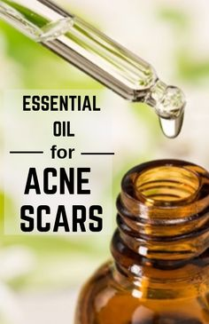 3 Best essential oils to remove acne scars from your face Natural Acne Treatment, Natural Acne Remedies, Doterra Essential Oils, Essential Oil Diffuser, Vaseline, Oils For Scars, Scar Cream, Acne Scar Removal, Remove Acne