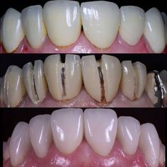 """610 Likes, 14 Comments - Biomimetic Dentistry (@biomimeticstudyclub) on Instagram: """"Beautiful eMax case by @relubledea . He does amazing work. Check out his account!…"""""""