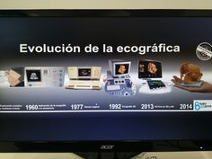 Evolución de la ecografía   Baby3Dprint