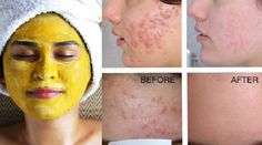 Learn how Indian Women handle acne and its scars