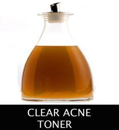 Natural homemade DIYs using apple cider vinegar - ♥ Real Beauty Spot ♥