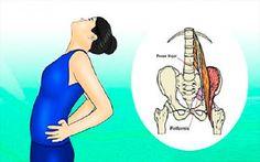 2 Sencillas maneras de aliviar el dolor y desbloquear el nervio ciático