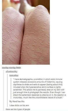 First I thought it was self-harm ... then, I was bloody intrigued :)
