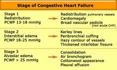 "Képtalálat a következőre: ""congestion heart failure"" Respiratory Therapy, Respiratory System, Congestive Heart Failure Stages, Pleural Effusion, Critical Care Nursing, Cardiac Nursing, Pulmonary Hypertension, Cardiovascular Disease, Nurse Practitioner"