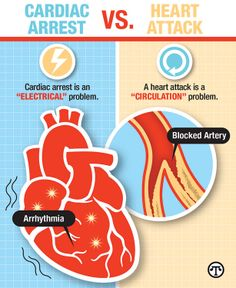 Heart Attack and Sud