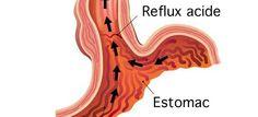 Remedes naturels pour soulager et calmer les remontées acides... Soigner les intestins de l'acidité gastrique.