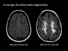 The Aging Brain - Week by Week Time Lapse - YouTube https://www.youtube.com/watch?v=J3fb0CaDpEk