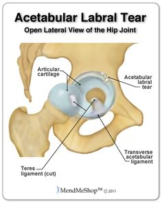 Labral Tear. A hip labral tear most often occurs in the lip of the fibrocartilage along the rim of the labrum. Although it is not common, if there's a loose piece of cartilage from the tear, it may catch within the joint and cause a snapping sensation known snapping hip syndrome | MendMyHip.com