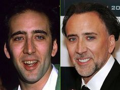 Nicolas-Cage-teeth-before-after-cosmetic-dentistry